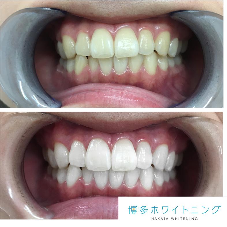する 中学生 を 方法 白く 歯